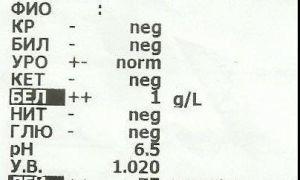 Расшифровка neg в анализе мочи