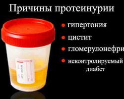 Высокий уровень белка в моче