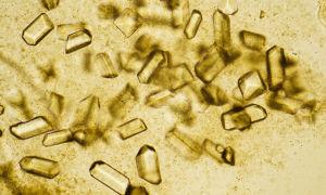 Причины образования в моче кристаллов мочевой кислоты