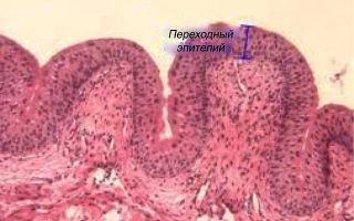 Появление плоского эпителия в моче ребенка