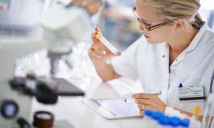 Химико токсикологическое исследование мочи