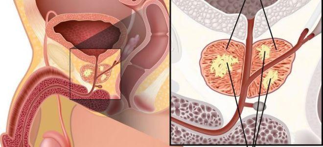 Как избавиться от фиброза простаты предстательной железы