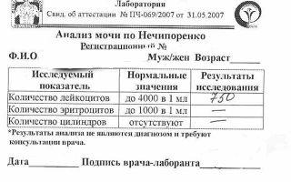 Что показывает анализ мочи по Нечипоренко