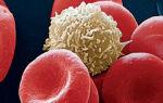 Лейкоциты в моче — норма для женщин