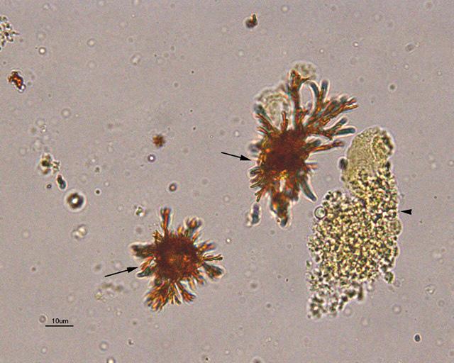 Билирубин под микроскопом
