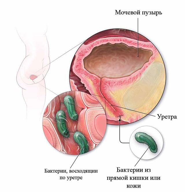 Анальный секс бактерии у мужчин