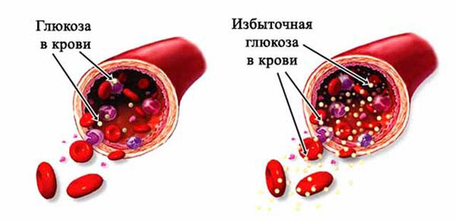 Повышенная глюкоза