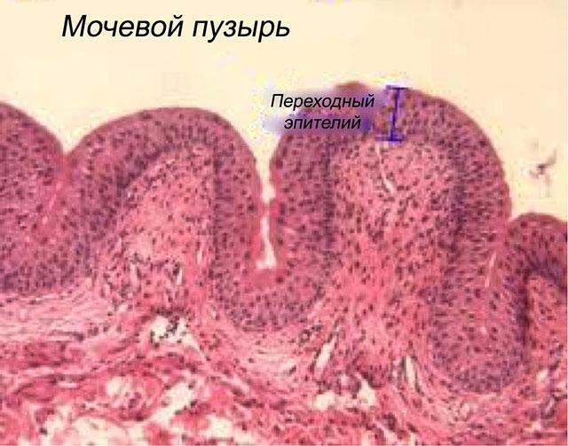 Один из органов мочевыделительной системы