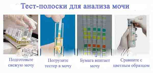 Измерение белка в моче