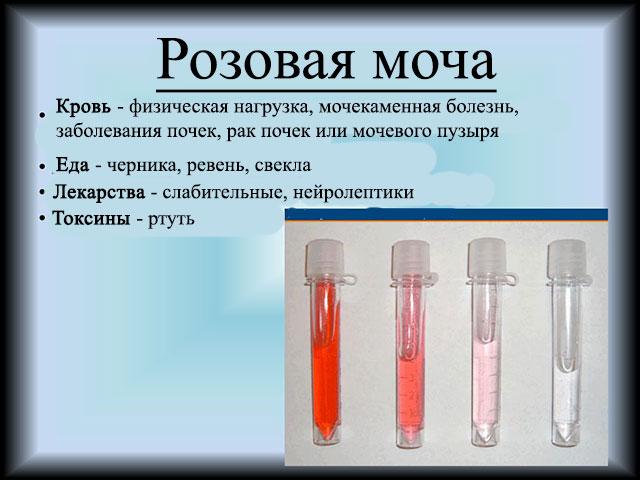Причины розовой мочи