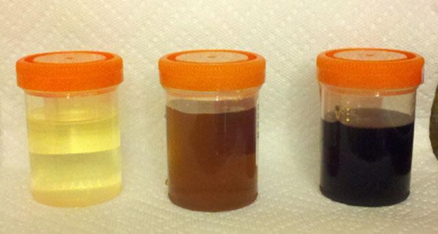 adderall orange urine