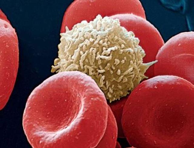 Что делать, если у ребенка в моче повышены лейкоциты