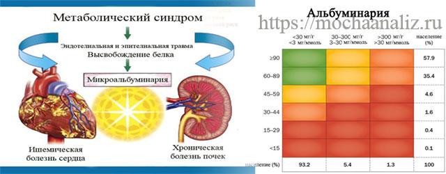 Анализ мочи МАУ – норма при сахарном диабете, причины повышения концентрации альбумина, подготовка к обследованию и расшифровка результатов