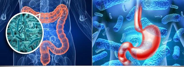 Клебсиельная бактерия