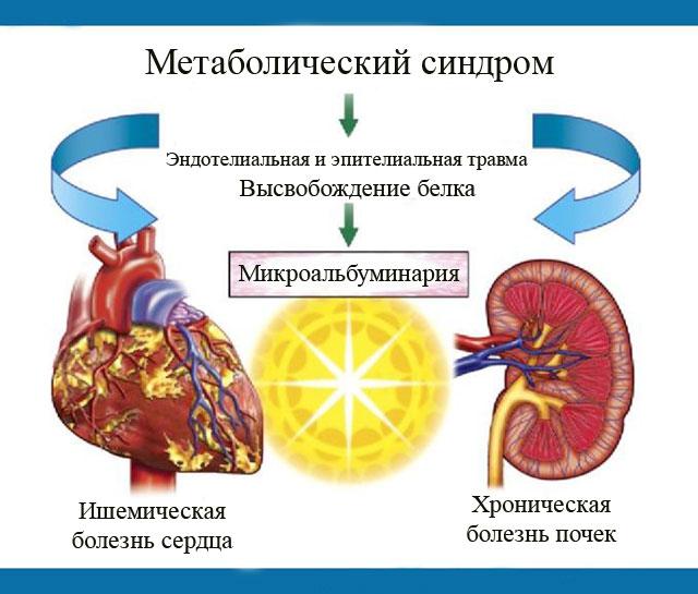 Микроальбуминария