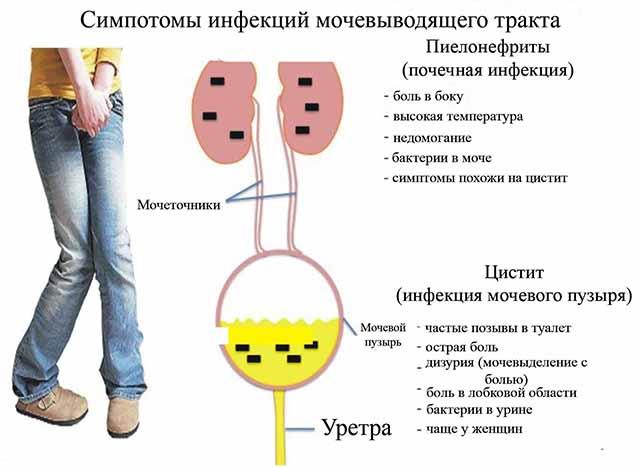 Мочеполовые болезни