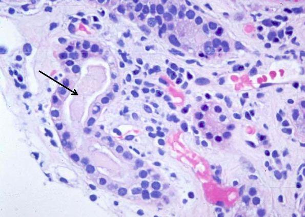Следствием чего, в урине появляются следы лейкоцитарной эстеразы?