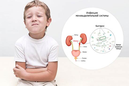 Мочеполовая инфекция у ребенка