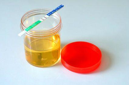 Желтая жидкость в контейнере