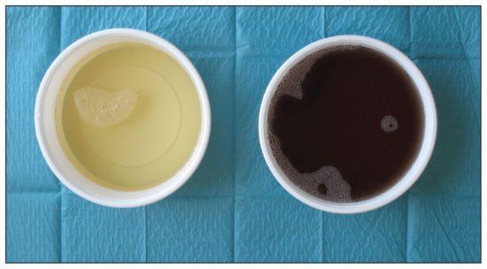 Коричневая урина