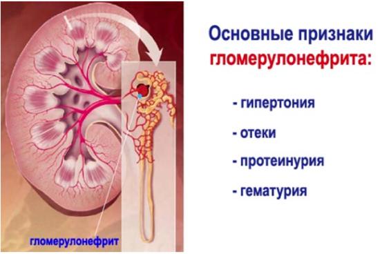 Симптоматика глоумерулонефрита