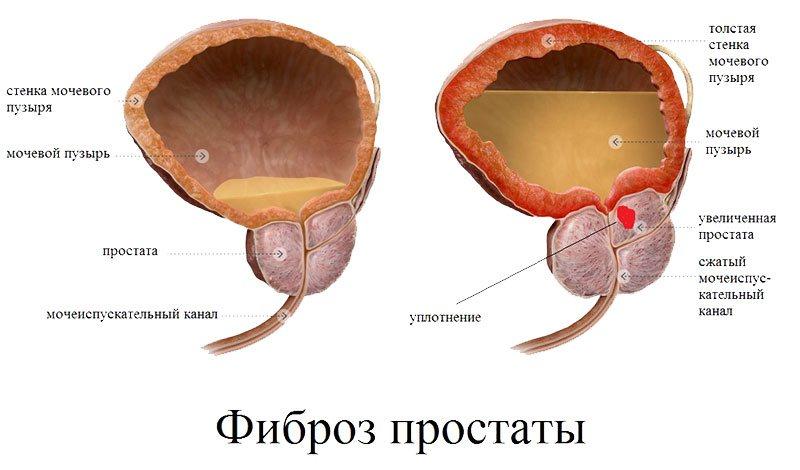 Что такое фиброз урология