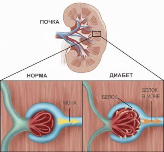 Диабетическая форма