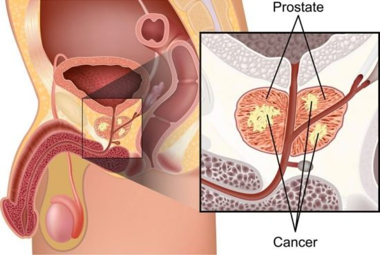 Пораженная простата