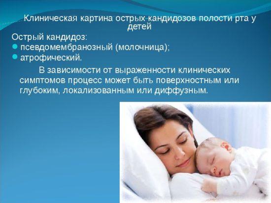 Молочница бывает у детей часто