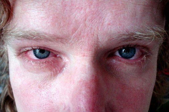 Страдать могут даже глаза