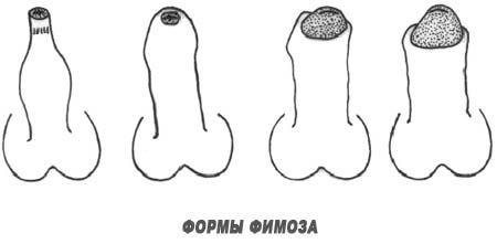 Формы фимоза