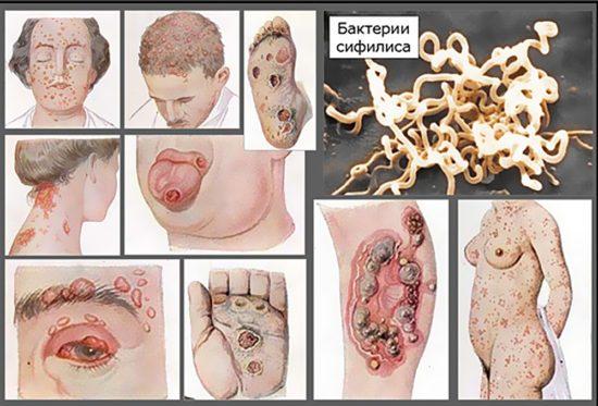 Возможные проявления сифилиса