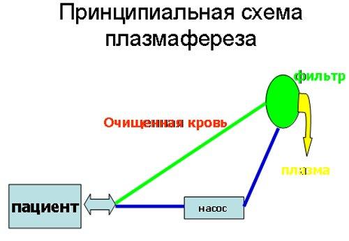 Схема плазмафареза