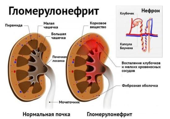 Изменения в органе