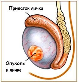 Лечение несеминомных опухолей яичка - Вместе против рака