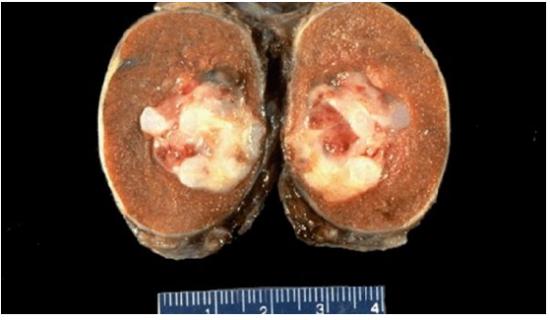 Пораженный раком орган